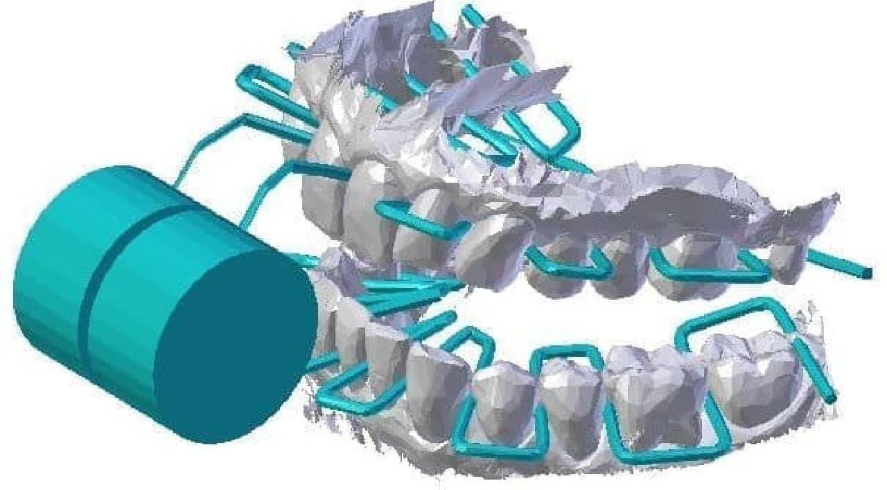 全部の歯間を同時にクリーニングするデンタルフロス「3D-Flosser」